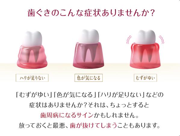 歯ぐきのこんな症状ありませんか?