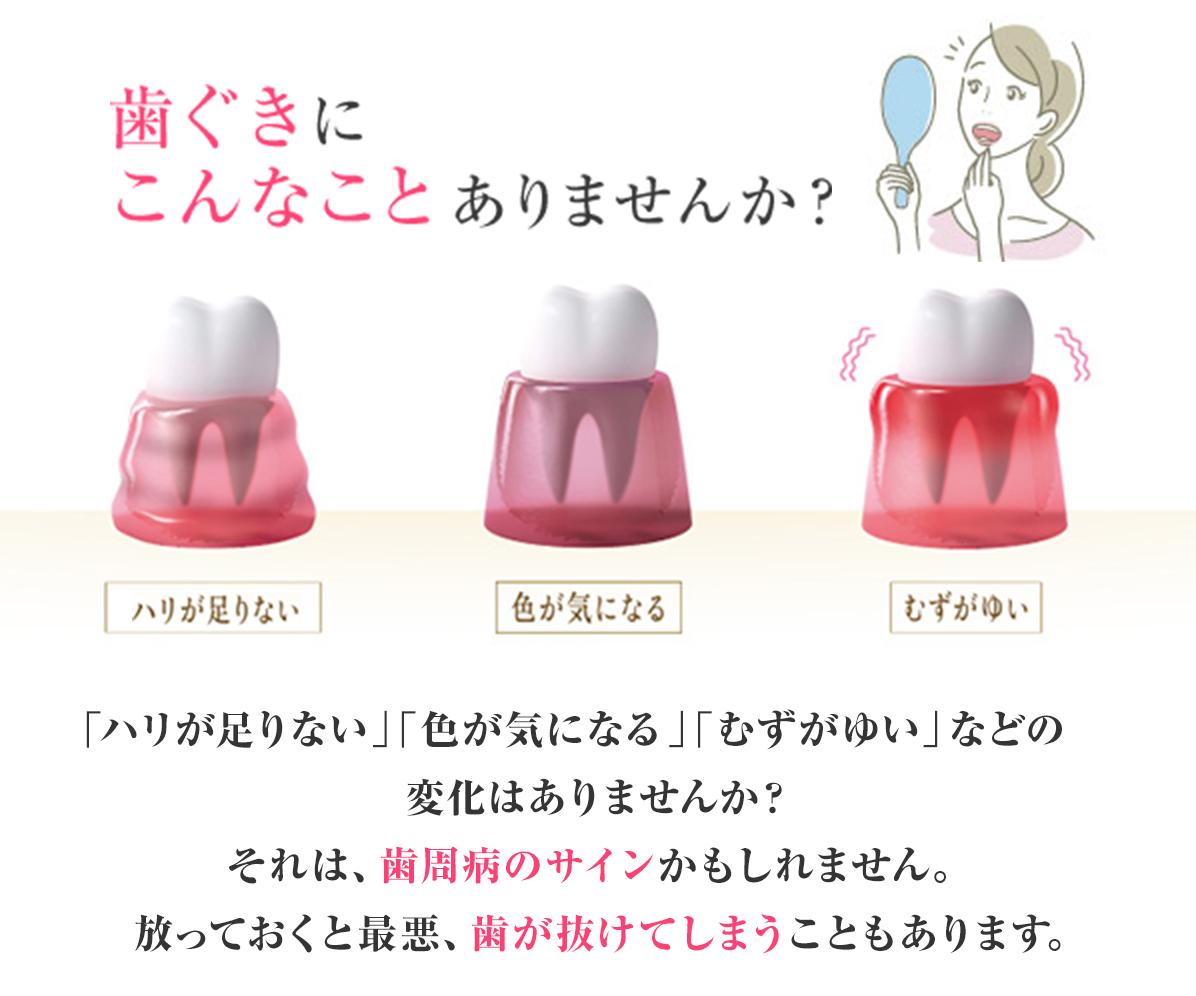歯ぐきにこんなことありませんか? 「むずがゆい」「色が気になる」「ハリが足りない」などの           症状はありませんか?それは、ひょっとすると           歯周病になるサインかもしれません。           放っておくと最悪、歯が抜けてしまうこともあります。