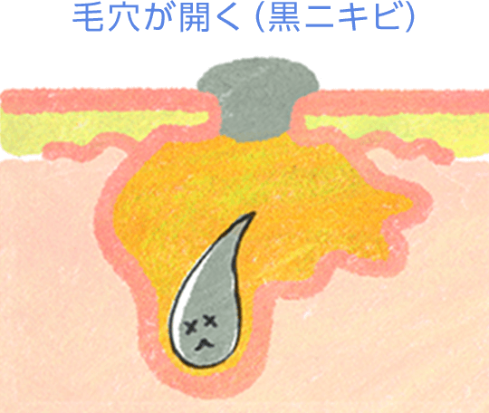毛穴が開く(黒ニキビ)