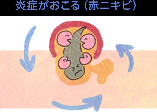 炎症がおこる(赤ニキビ)
