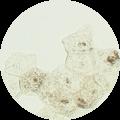 「メラニンが蓄積している表皮細胞」イメージ