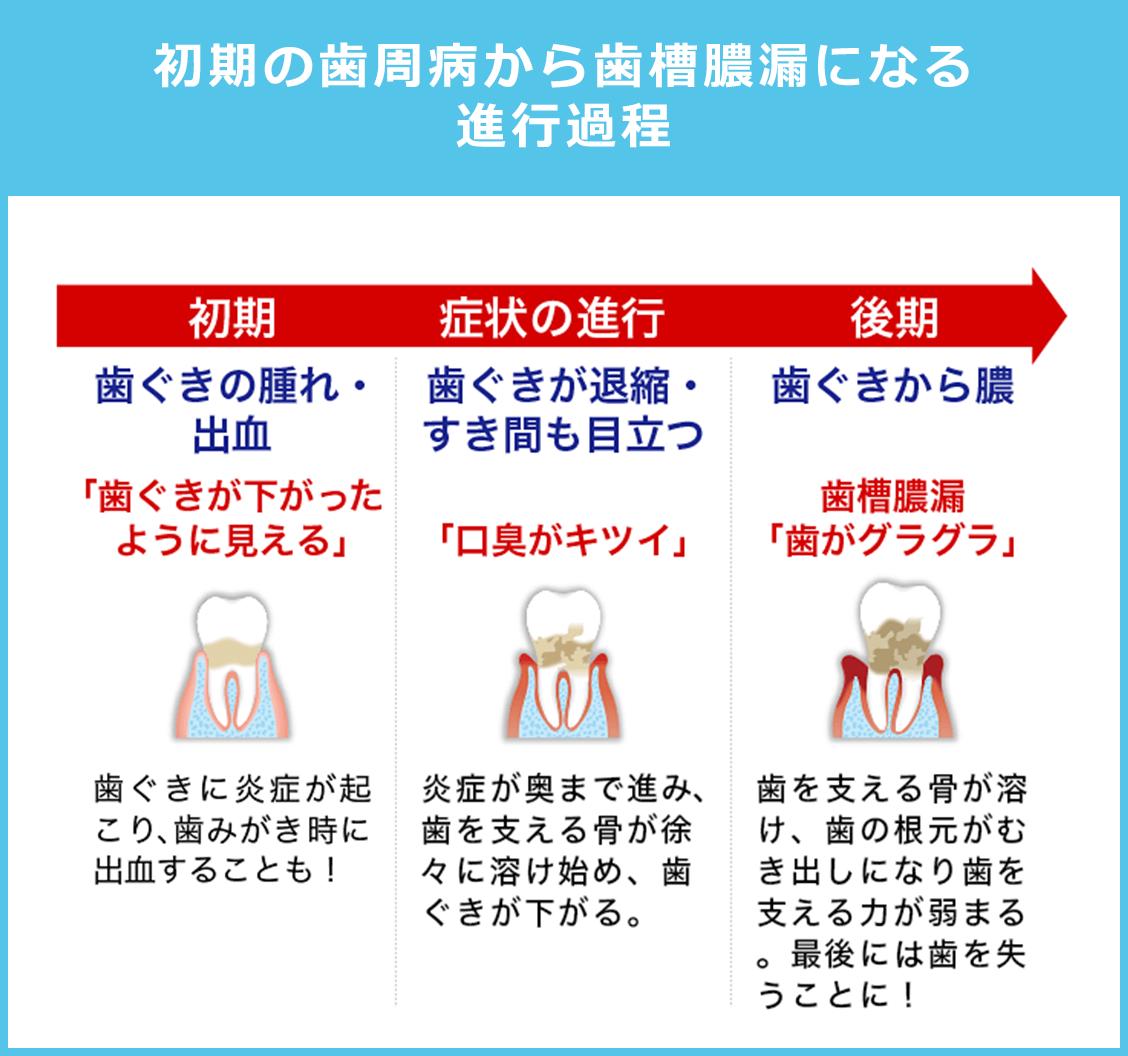 初期の歯周病から歯槽膿漏になる進行過程