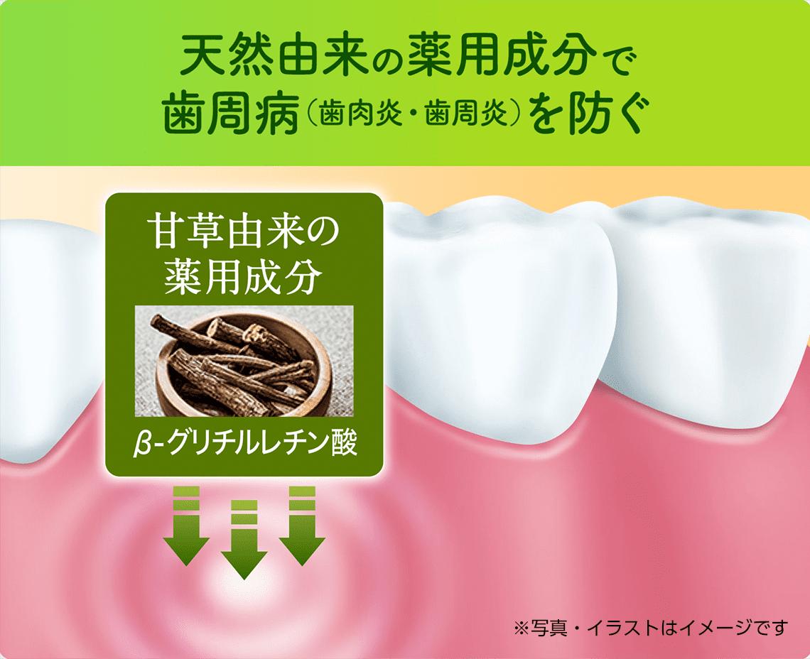 天然由来の薬用成分で歯周病(歯肉炎・歯周炎)を防ぐ